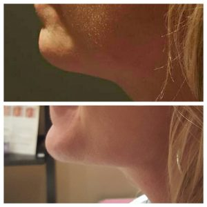 Before and after Kybella photos